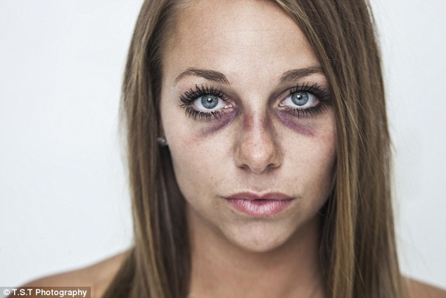 Brooke Beaton shares domestic abuse photos